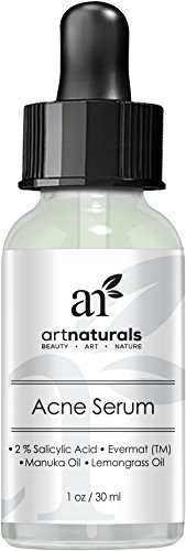 Art Naturals® Anti Acne Serum Treatment 1 Oz- Dermatologist Tested Product, Made With Revolutionary Evermat® & Organic Ingredients To Help Control & Get Rid Of Acne – Best Pore Minimizer -For All Ages
