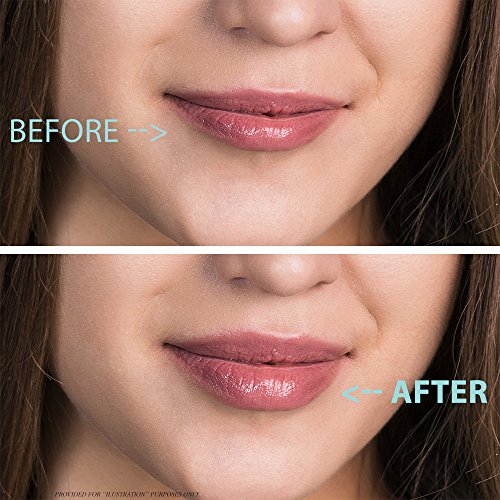 Ageless Instant Lip Plumper By Nutrafeel Beauty POTENT Lips BOOSTER Stimulates Collagen Hyaluronic Acid Expands CURVE VOLUME Delivers Long Lasting Succulence–Your Partner Will Love It 0 1